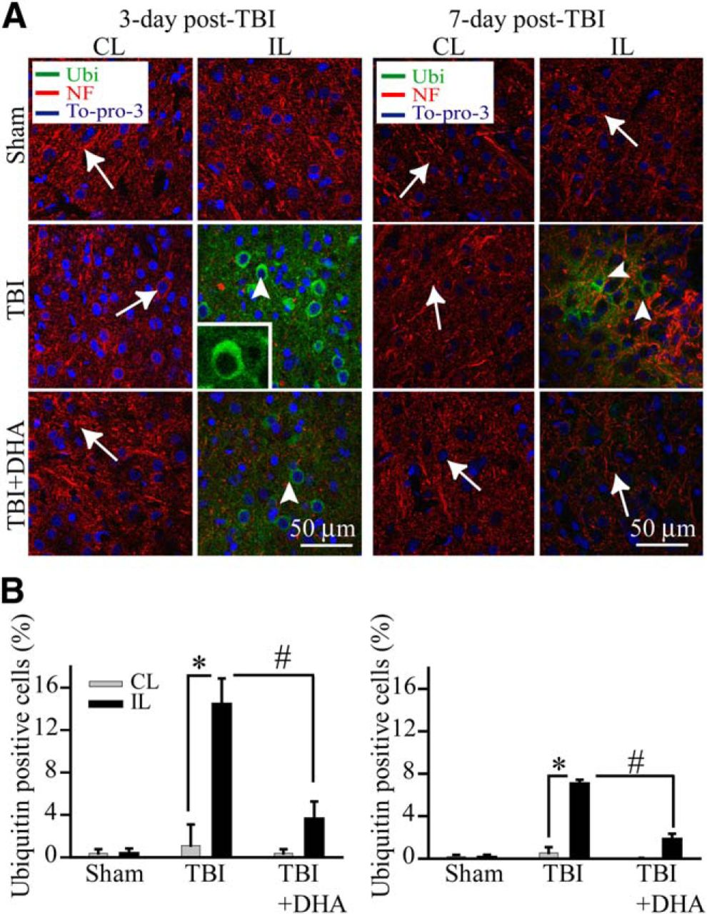 Docosahexaenoic Acid Reduces ER Stress and Abnormal Protein