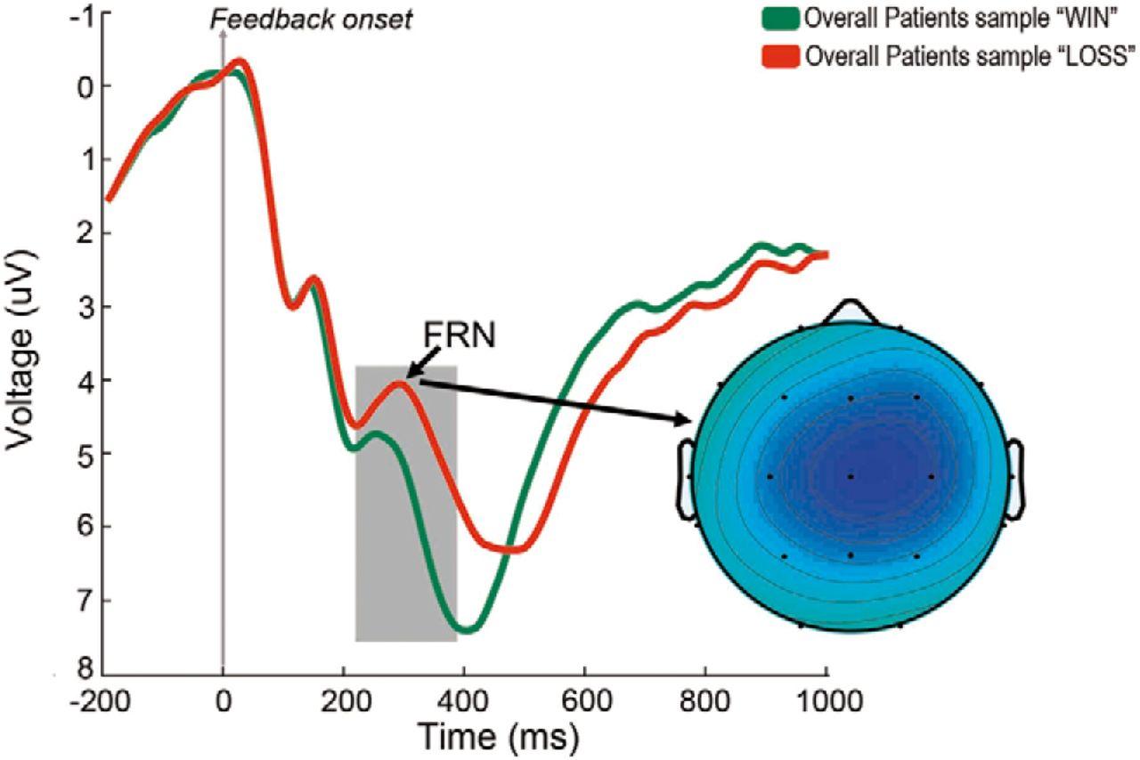 Apathy in Parkinson's Disease: Neurophysiological Evidence