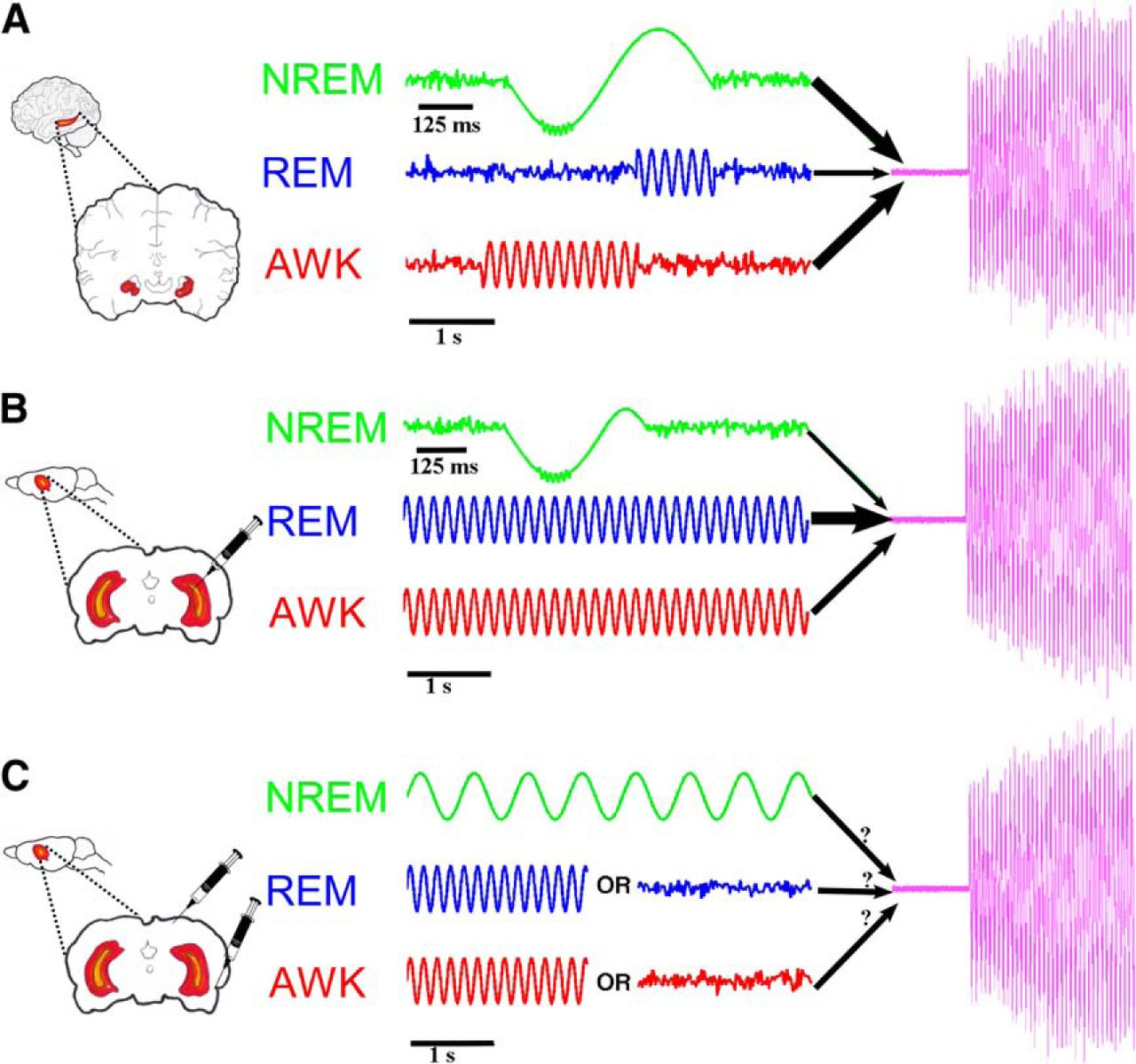 The Roles of Sleep–Wake States and Brain Rhythms in
