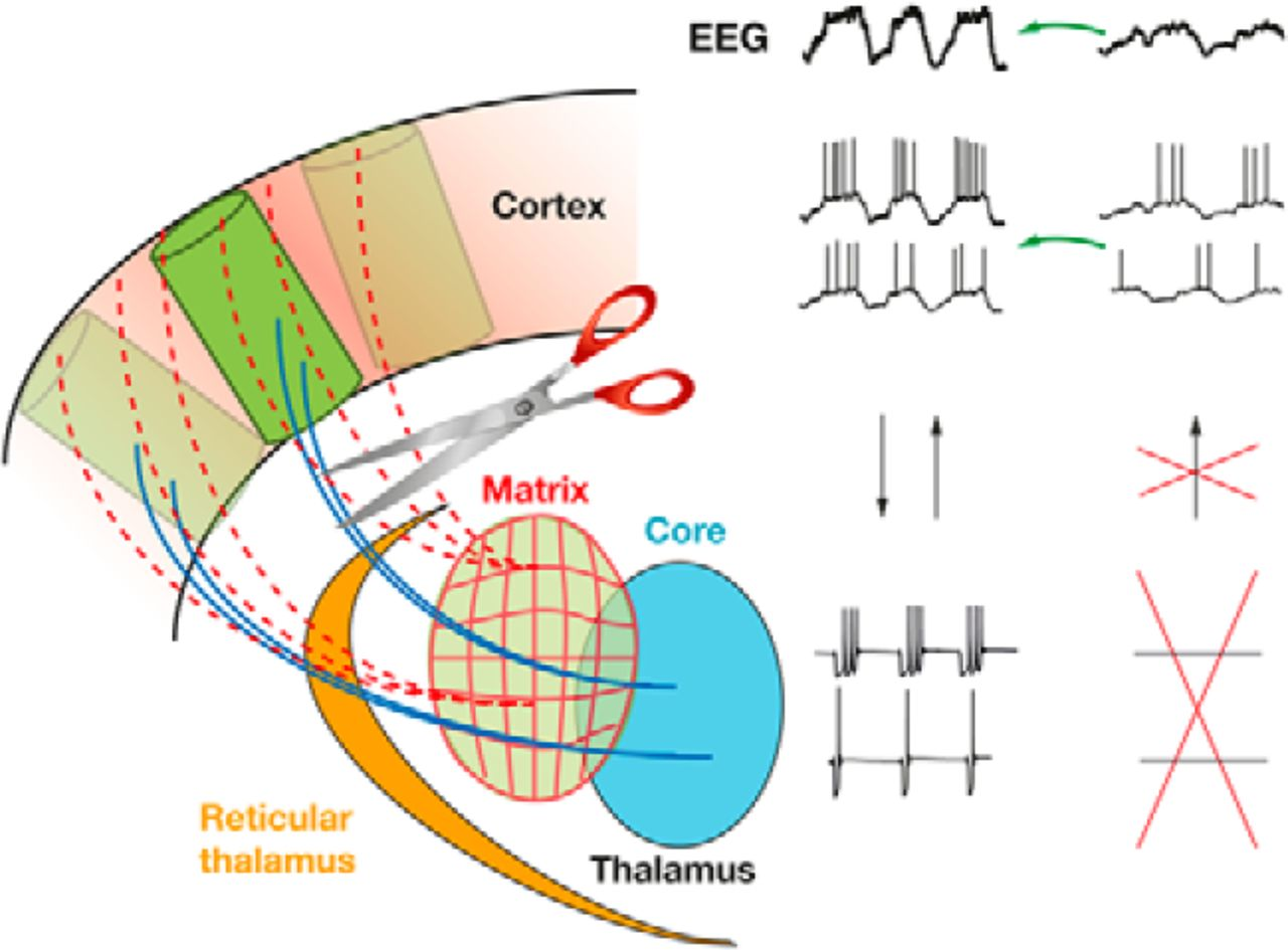 Thalamus And Cortex Inseparable Partners In Shaping Sleep Slow