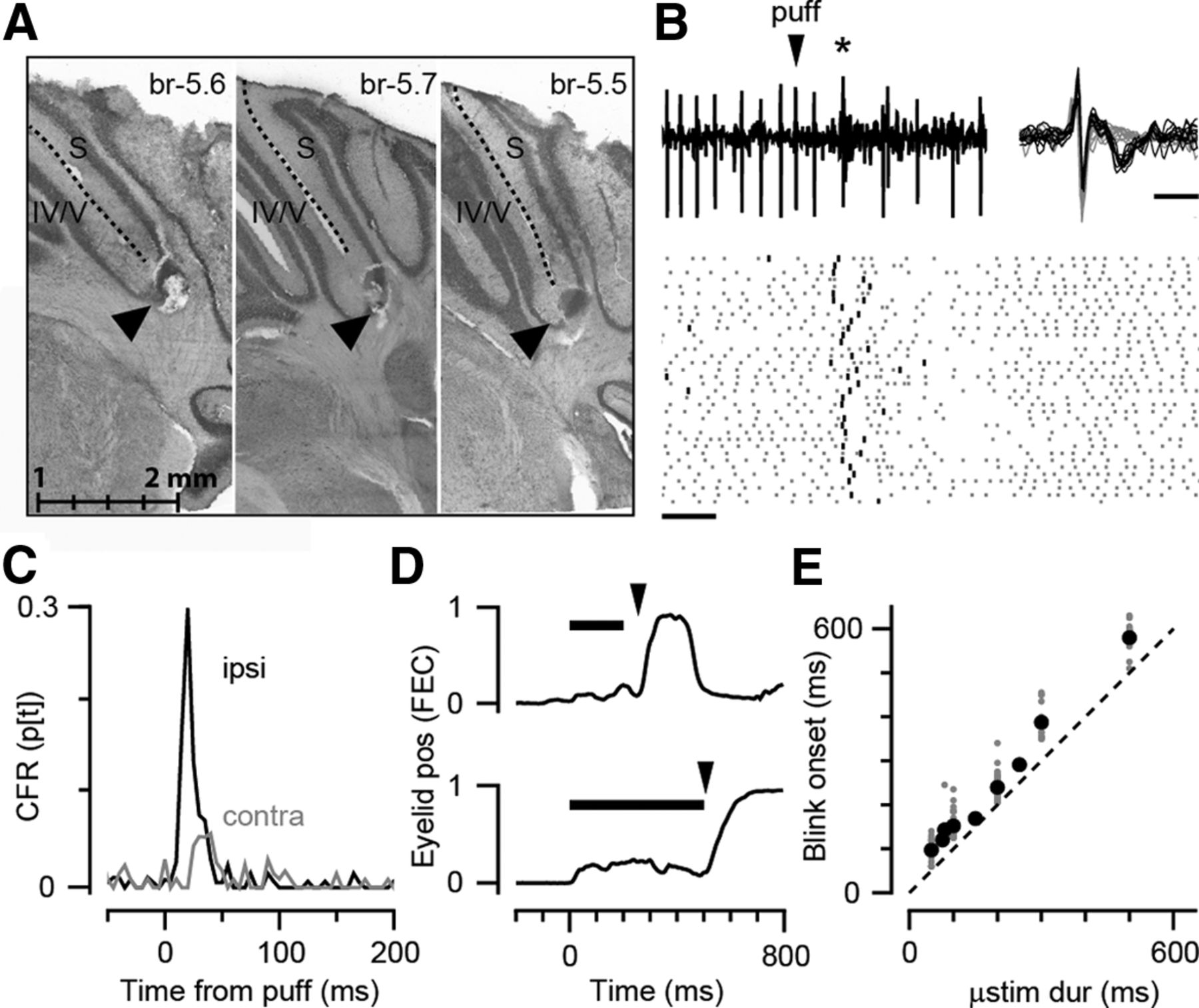 Precise Control of Movement Kinematics by Optogenetic Inhibition of