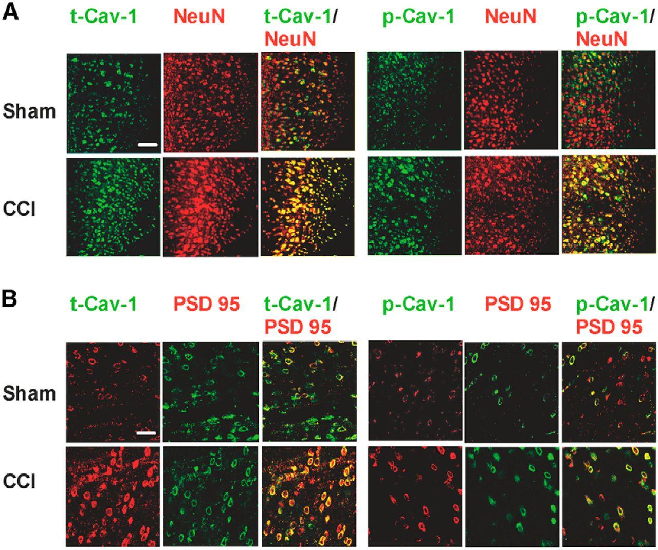 Caveolin-1 in the Anterior Cingulate Cortex Modulates Chronic