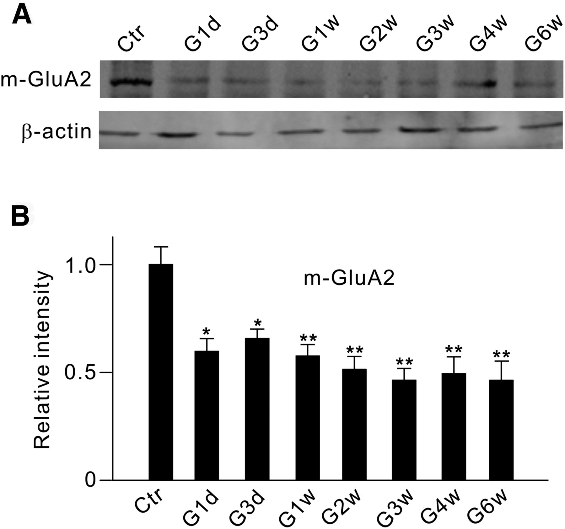 GluA2 Trafficking Is Involved in Apoptosis of Retinal Ganglion
