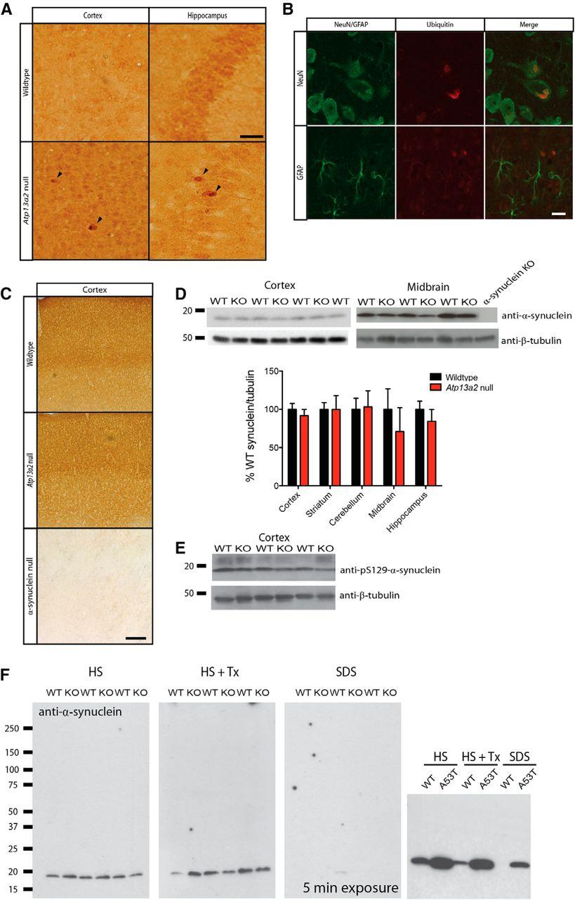 α-Synuclein-Independent Histopathological and Motor Deficits in Mice