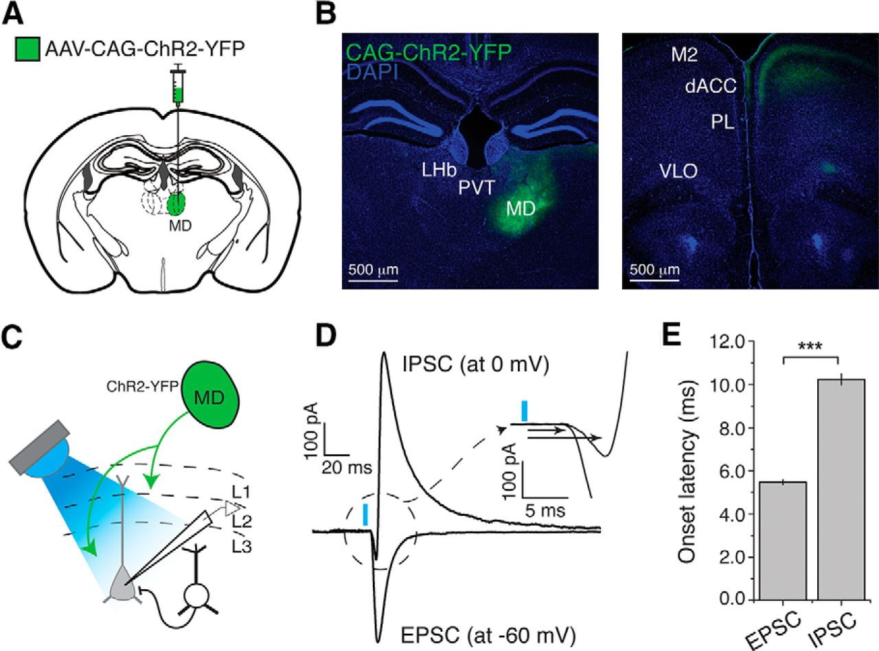 The Mediodorsal Thalamus Drives Feedforward Inhibition In Figure 1 A Parallel Circuit Left And Its Corresponding Diagram Download