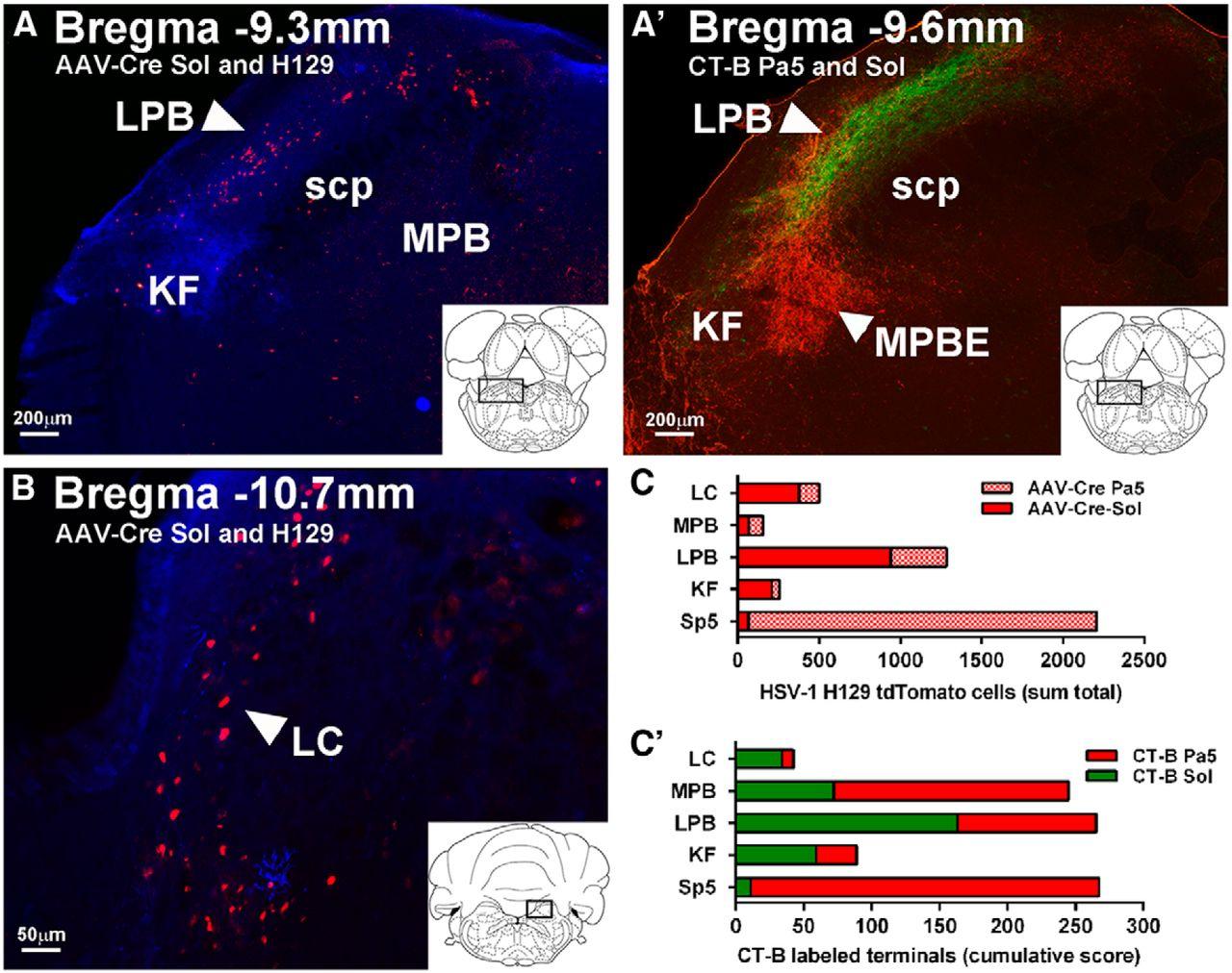 Distinct Brainstem and Forebrain Circuits Receiving Tracheal