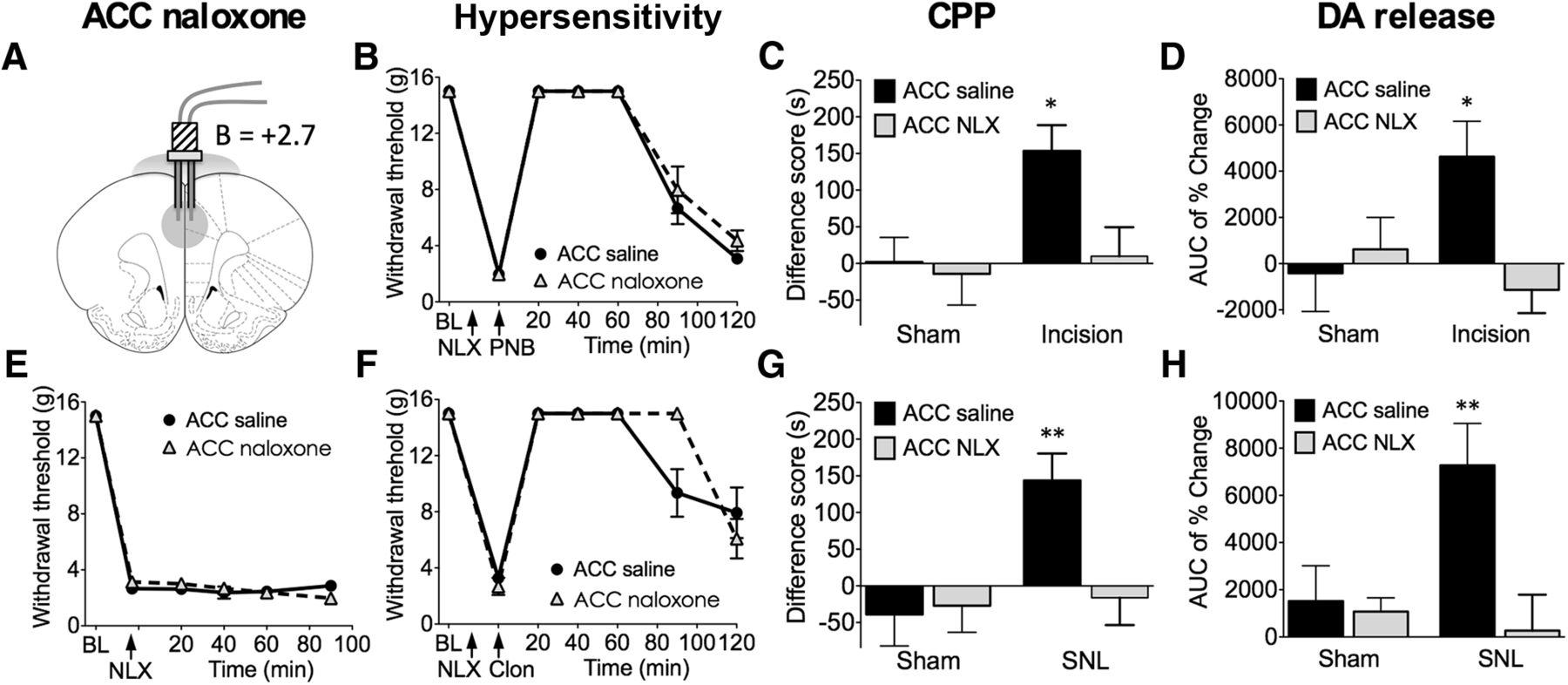 Endogenous Opioid Activity in the Anterior Cingulate Cortex ... on