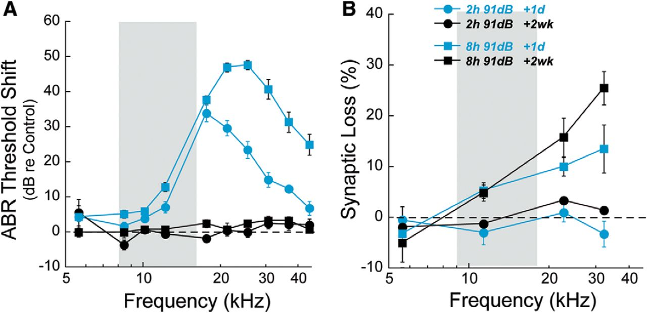 Aging after Noise Exposure: Acceleration of Cochlear