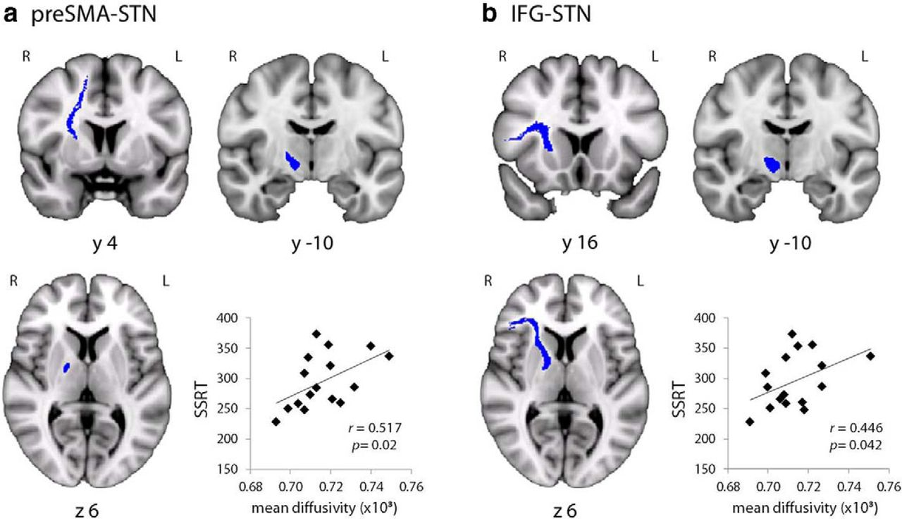 The Prefrontal Cortex Achieves Inhibitory Control by Facilitating ...