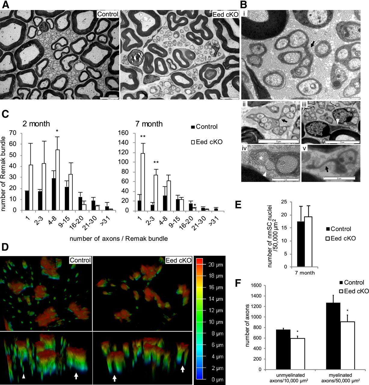 Regulation of Peripheral Nerve Myelin Maintenance by Gene