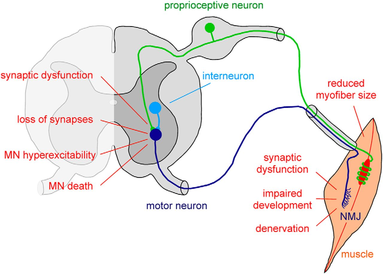 Disease Mechanisms And Therapeutic Approaches In Spinal Muscular Sma Wiring Diagram Download Figure
