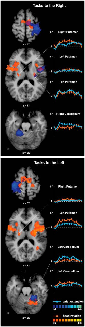 Neural Substrates For Head Movements In Humans A Functional