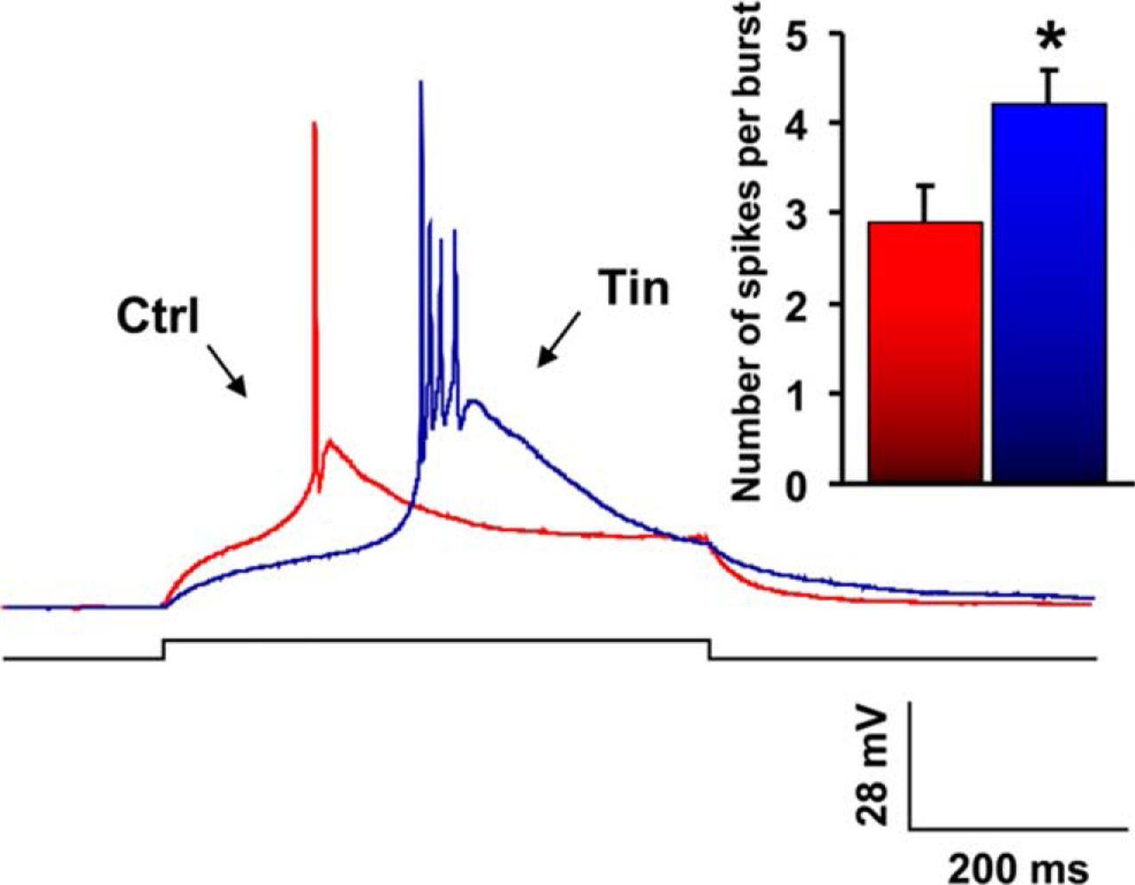 Enhanced GABAA-Mediated Tonic Inhibition in Auditory