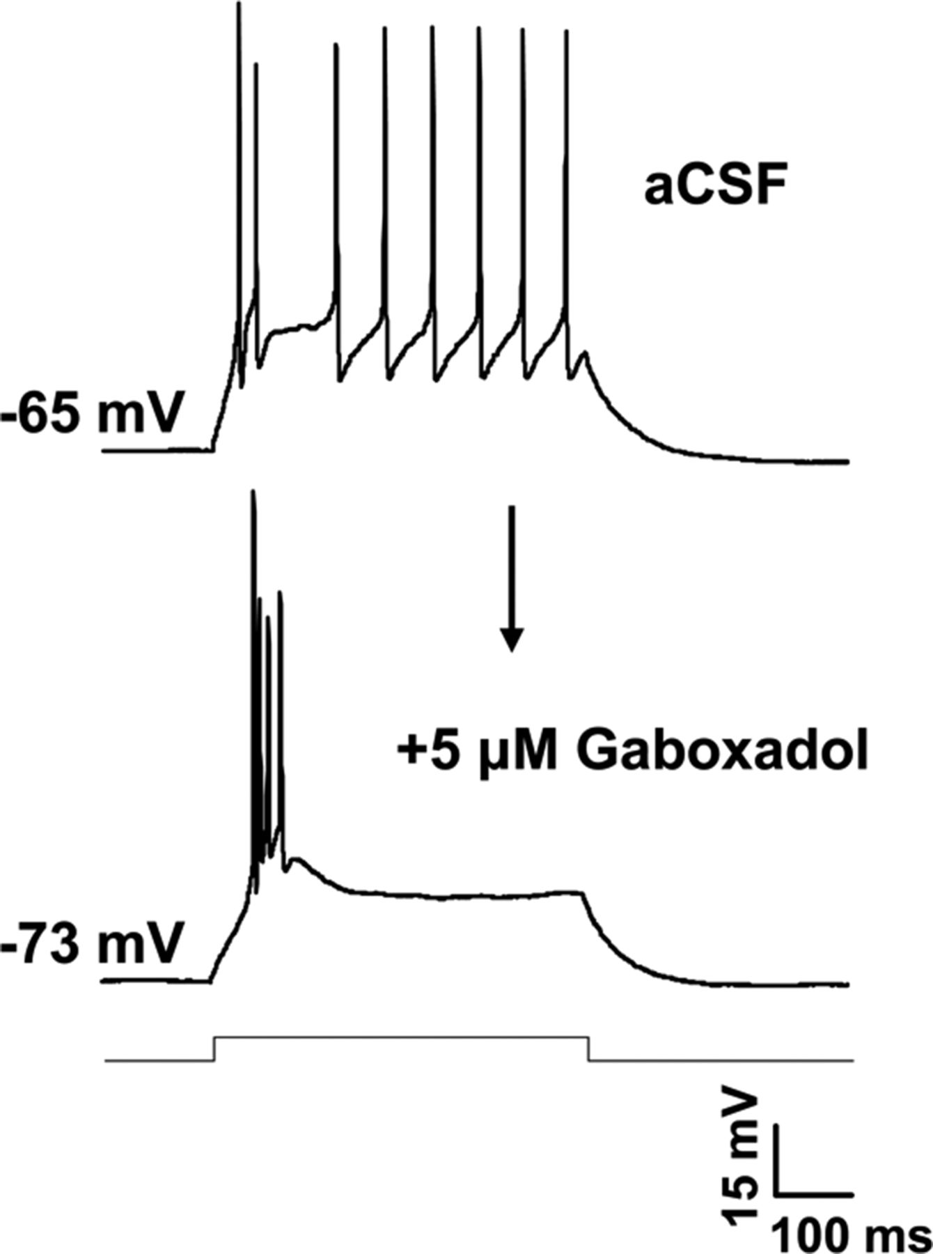 Enhanced Gabaa Mediated Tonic Inhibition In Auditory Thalamus Of Adcwithaticroprocessorcontrolledgain Basiccircuit Circuit Download Figure