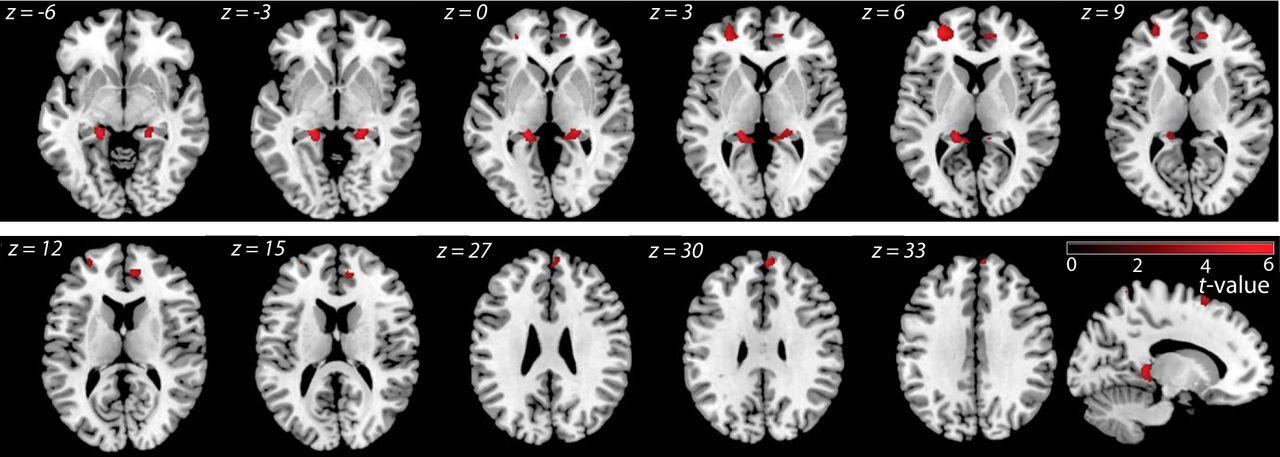 Metacognitive Mechanisms Underlying Lucid Dreaming | Journal