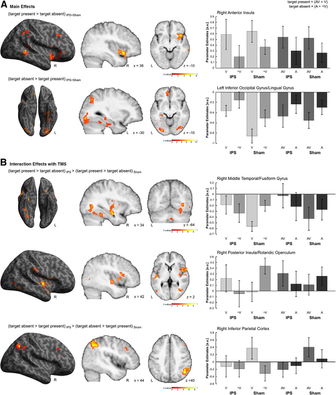 Concurrent TMS-fMRI Reveals Interactions between Dorsal and