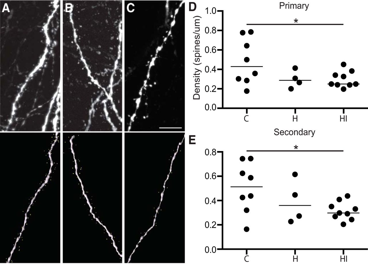 Reduced Cortical Activity Impairs Development and Plasticity