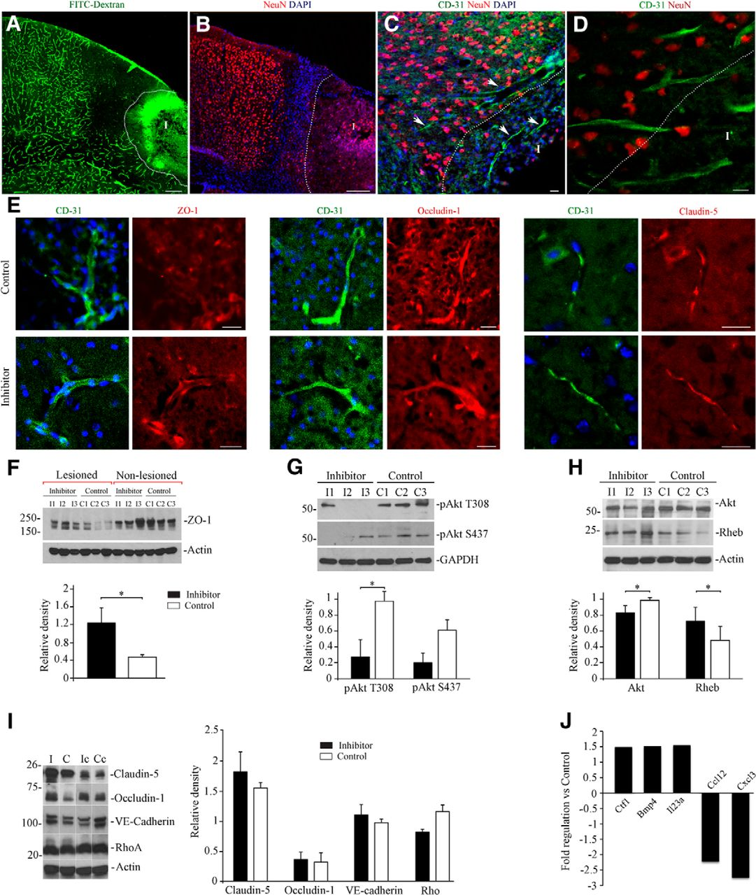In Vivo Inhibition Of MiR-155 Promotes Recovery After