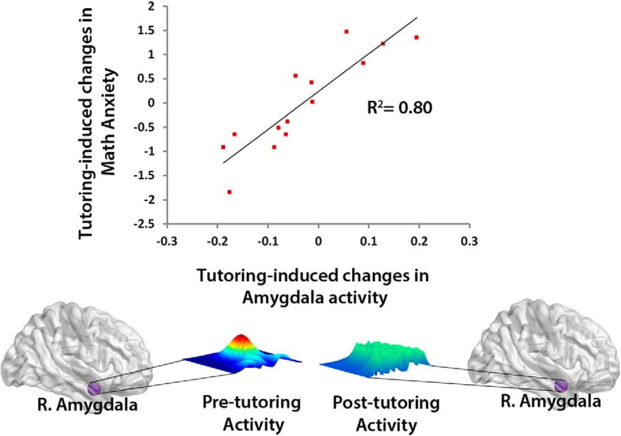 Remediation Of Childhood Math Anxiety And Associated Neural Circuits