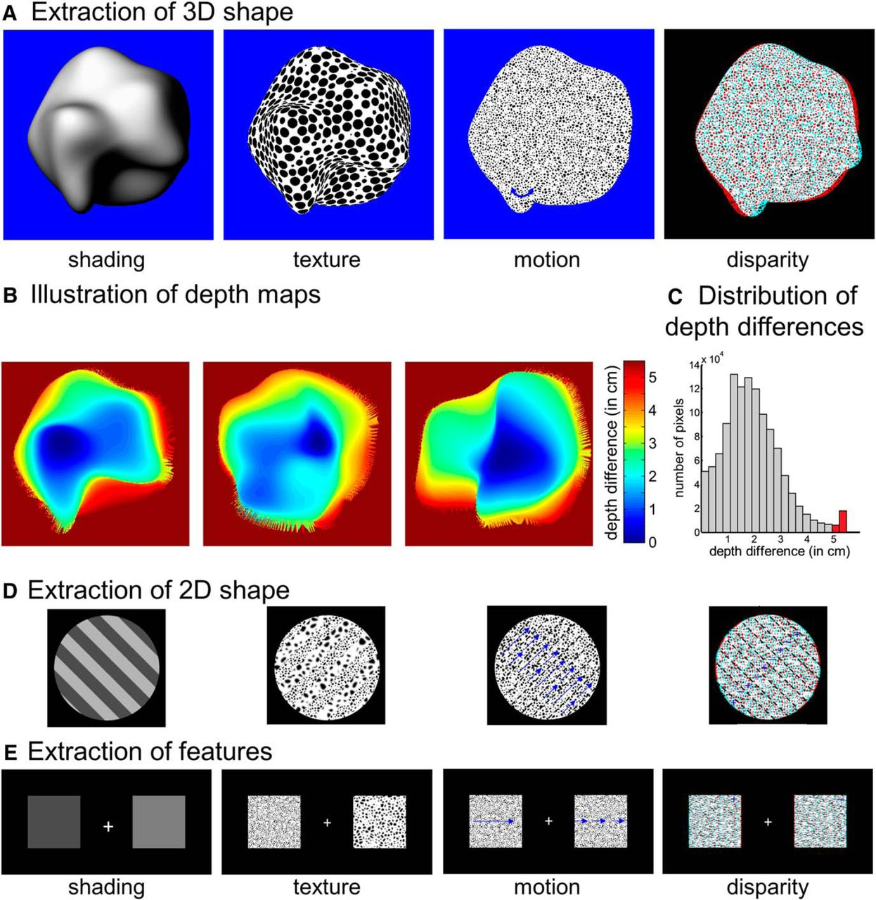 3D Shape Perception in Posterior Cortical Atrophy: A Visual