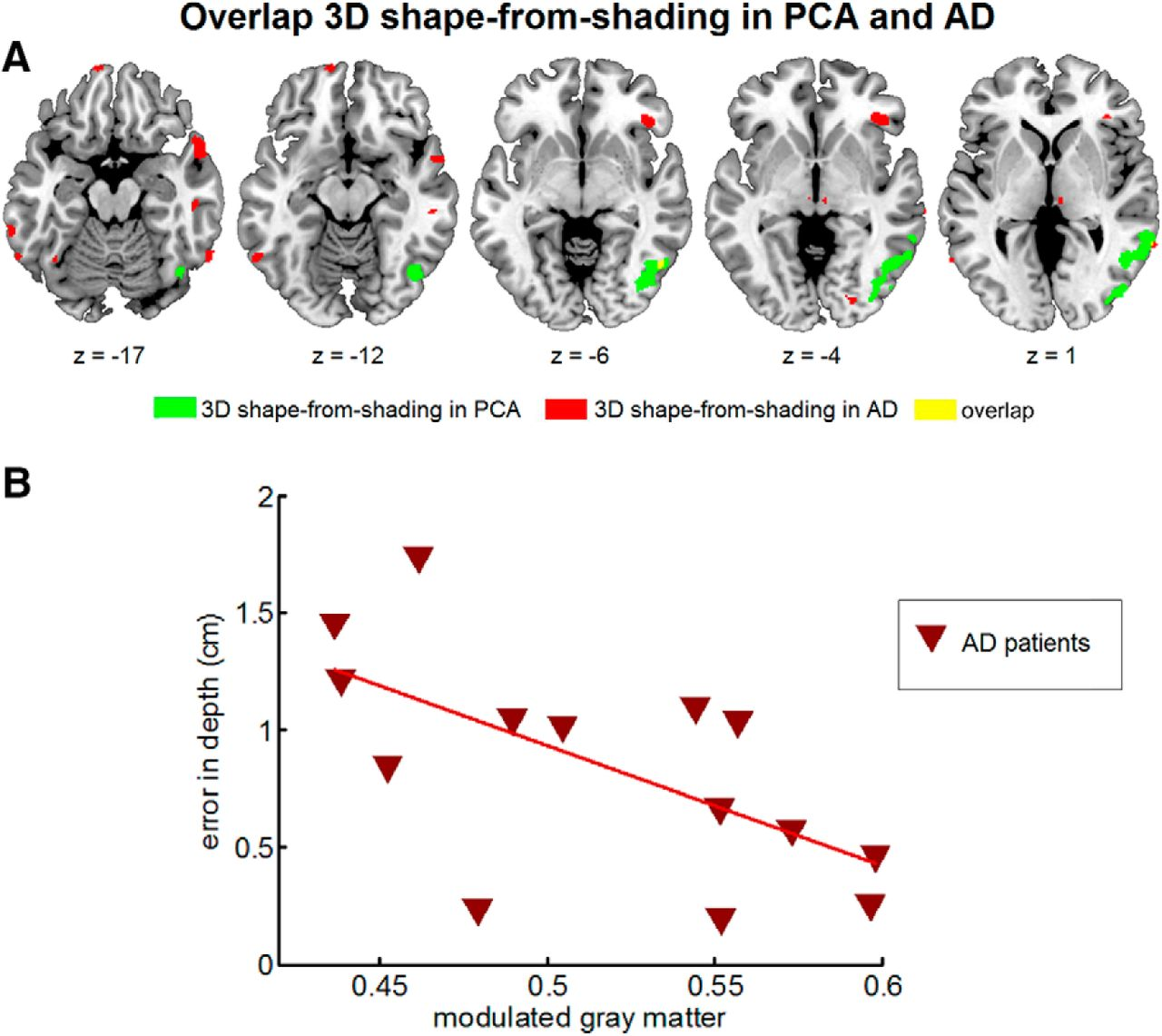 3d Shape Perception In Posterior Cortical Atrophy A Visual Autocad Electrical 2011 Provides Circuit Design And Analysis Tools Download Figure