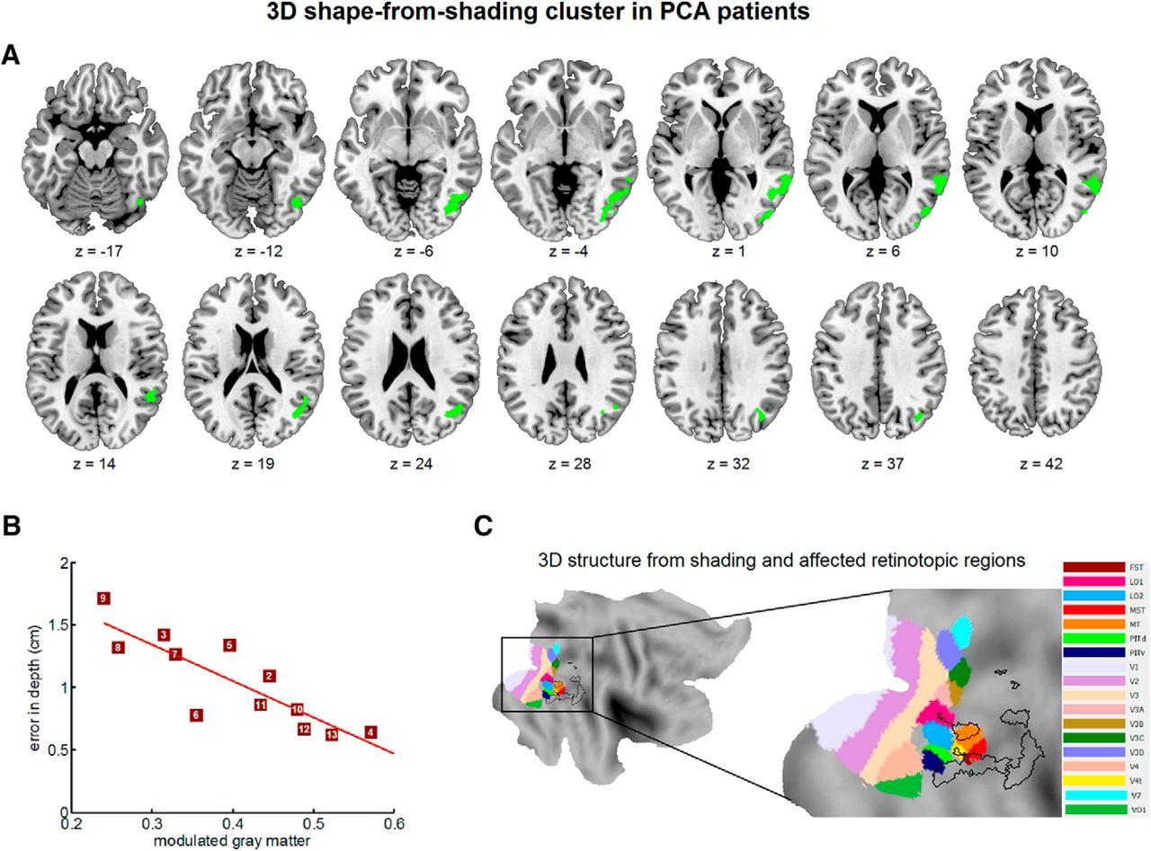 internationale stichting alzheimer onderzoek