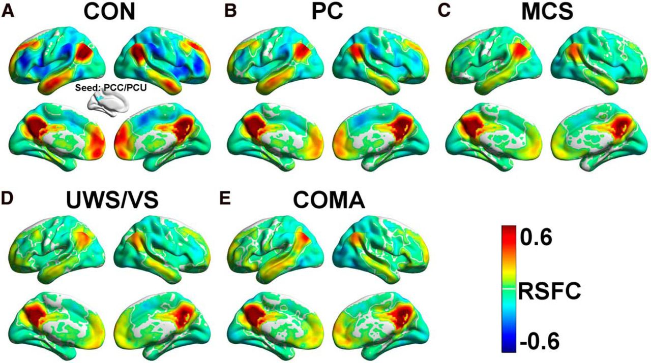Intrinsic Functional Connectivity Patterns Predict