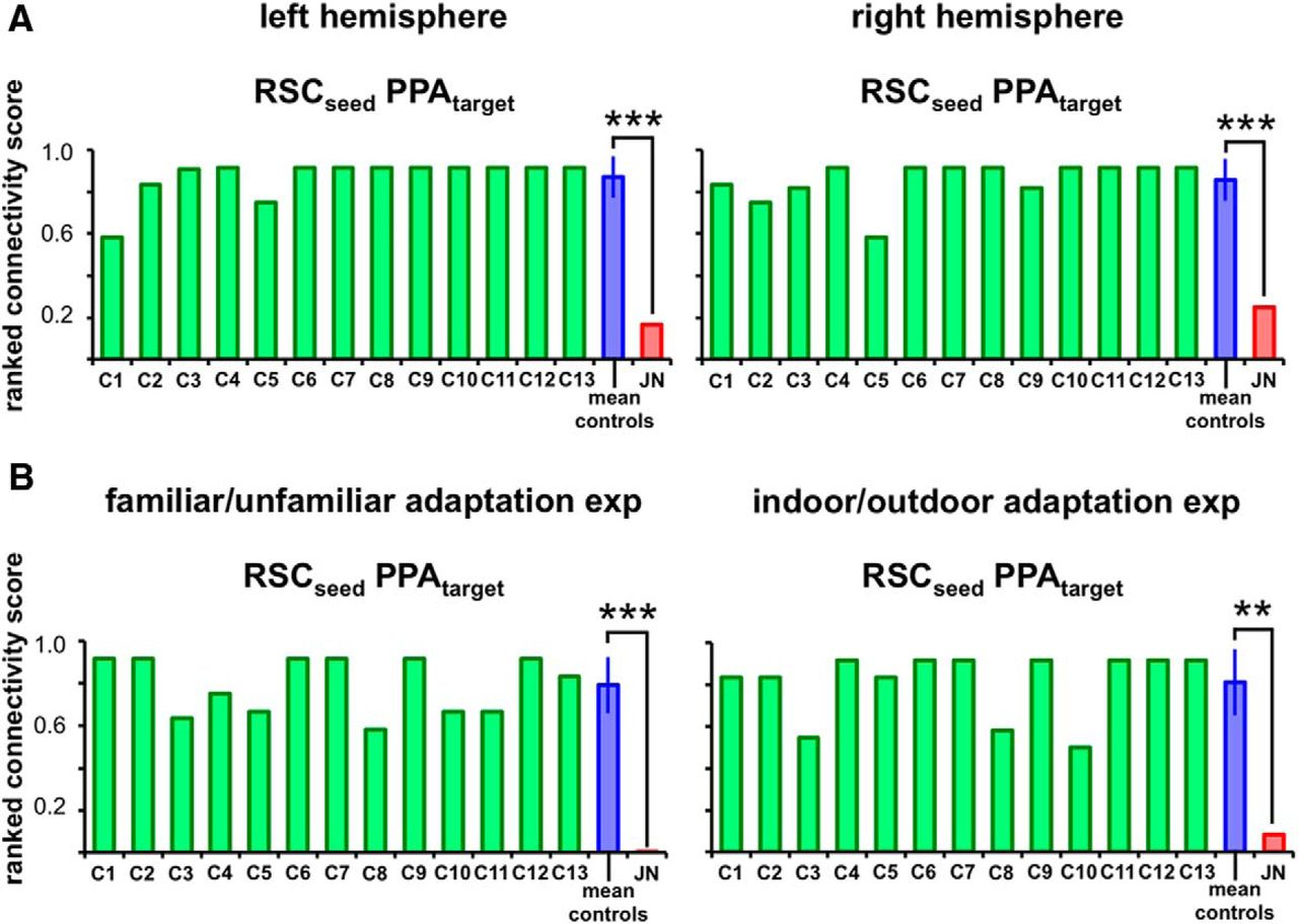 A Neural Basis for Developmental Topographic Disorientation