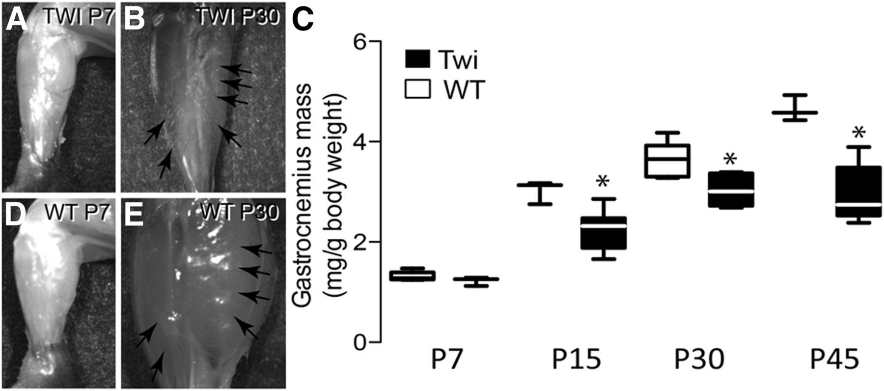 Mechanism of Neuromuscular Dysfunction in Krabbe Disease | Journal