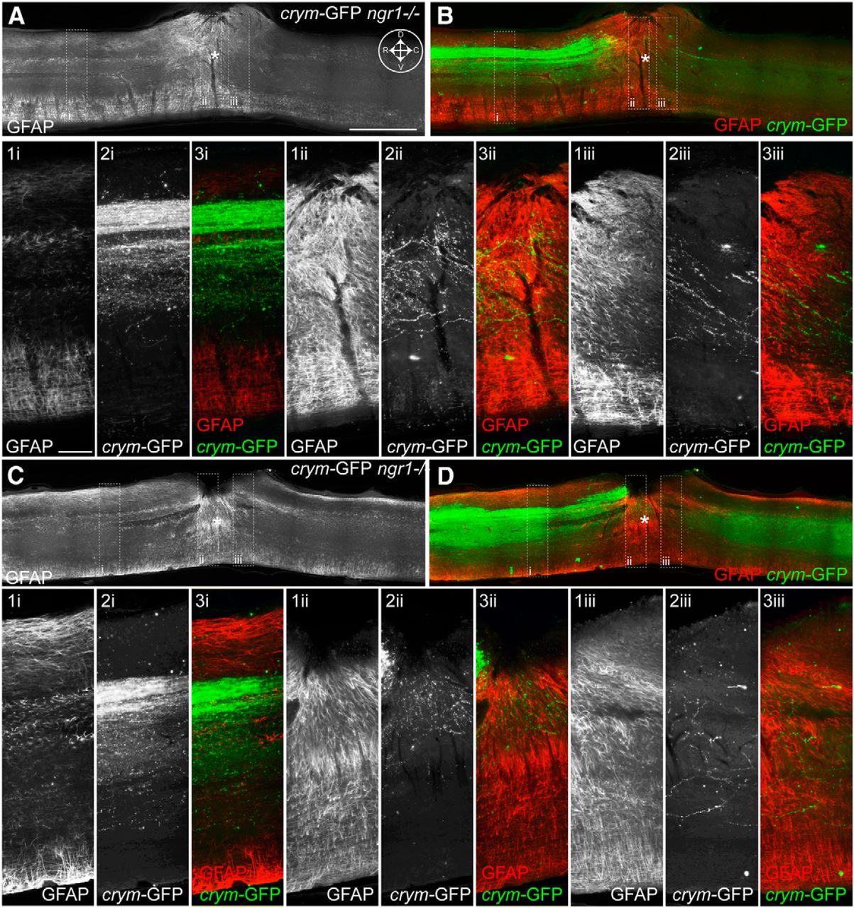 Comprehensive Corticospinal Labeling with mu-crystallin Transgene