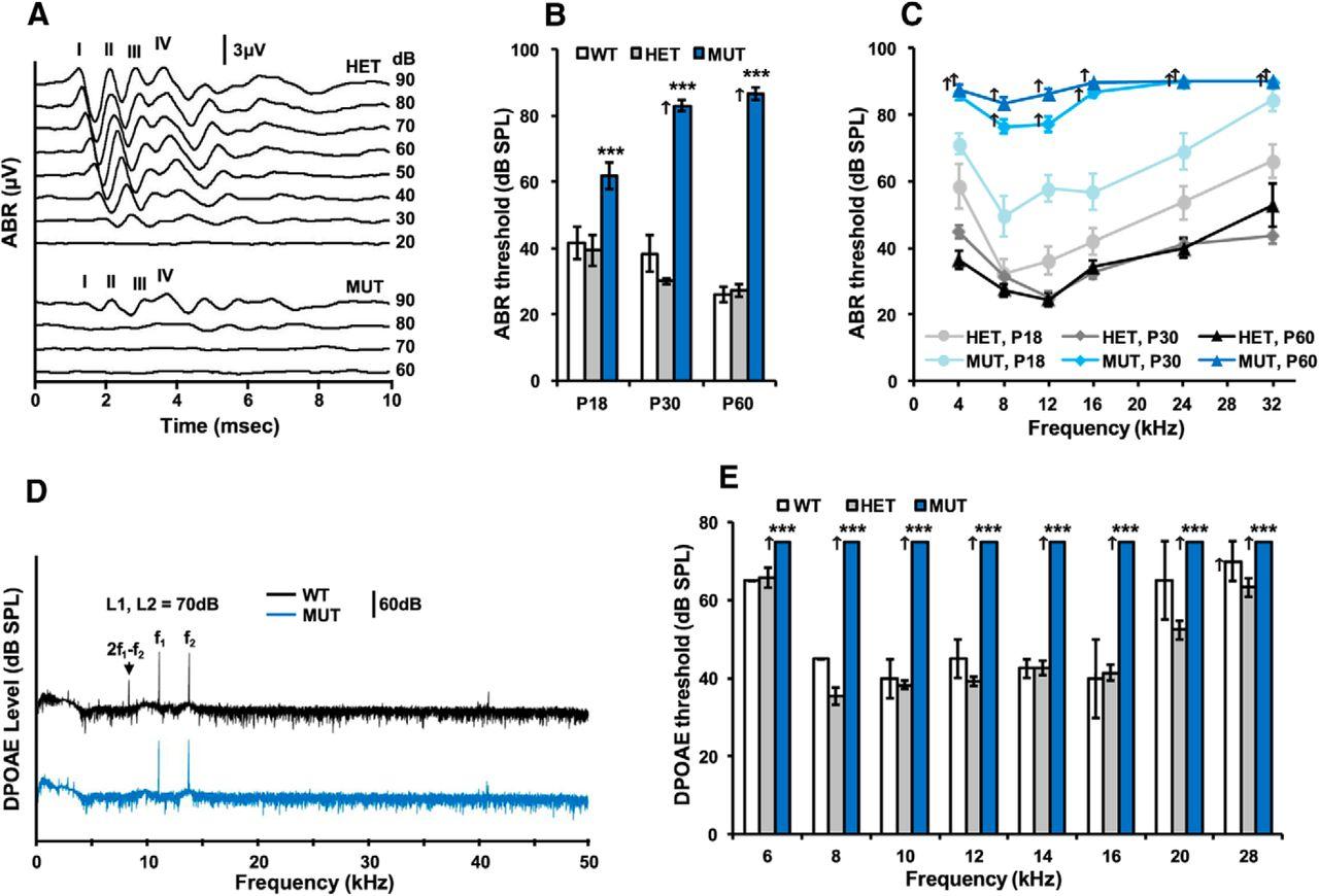 Progressive Hearing Loss in Mice Carrying a Mutation in Usp53