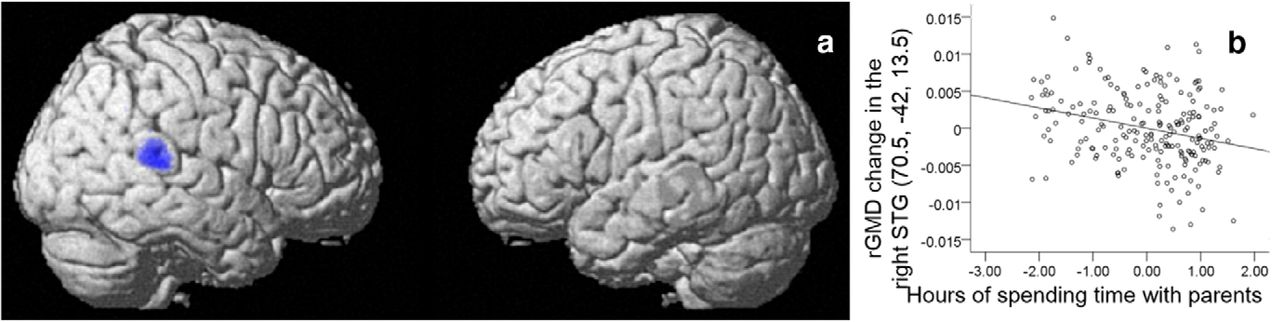 The Impact of Parent–Child Interaction on Brain Structures: Cross