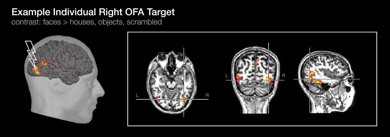 fusiform face area