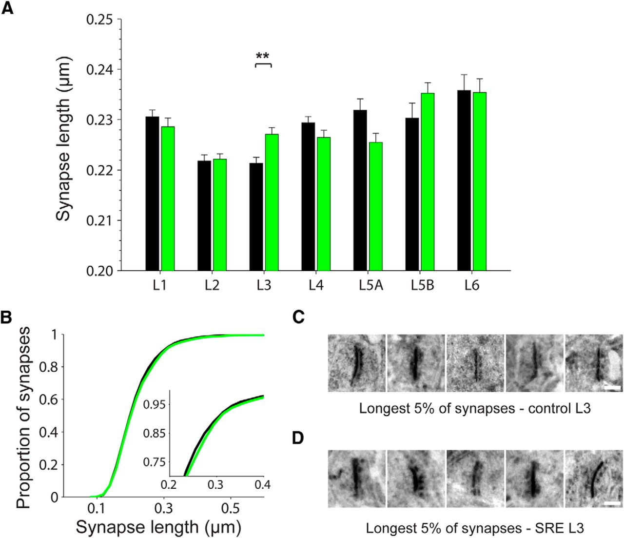 Unbiased High Throughput Electron Microscopy Analysis Of Experience Bruno Sre 2750 Wiring Diagram Download Figure