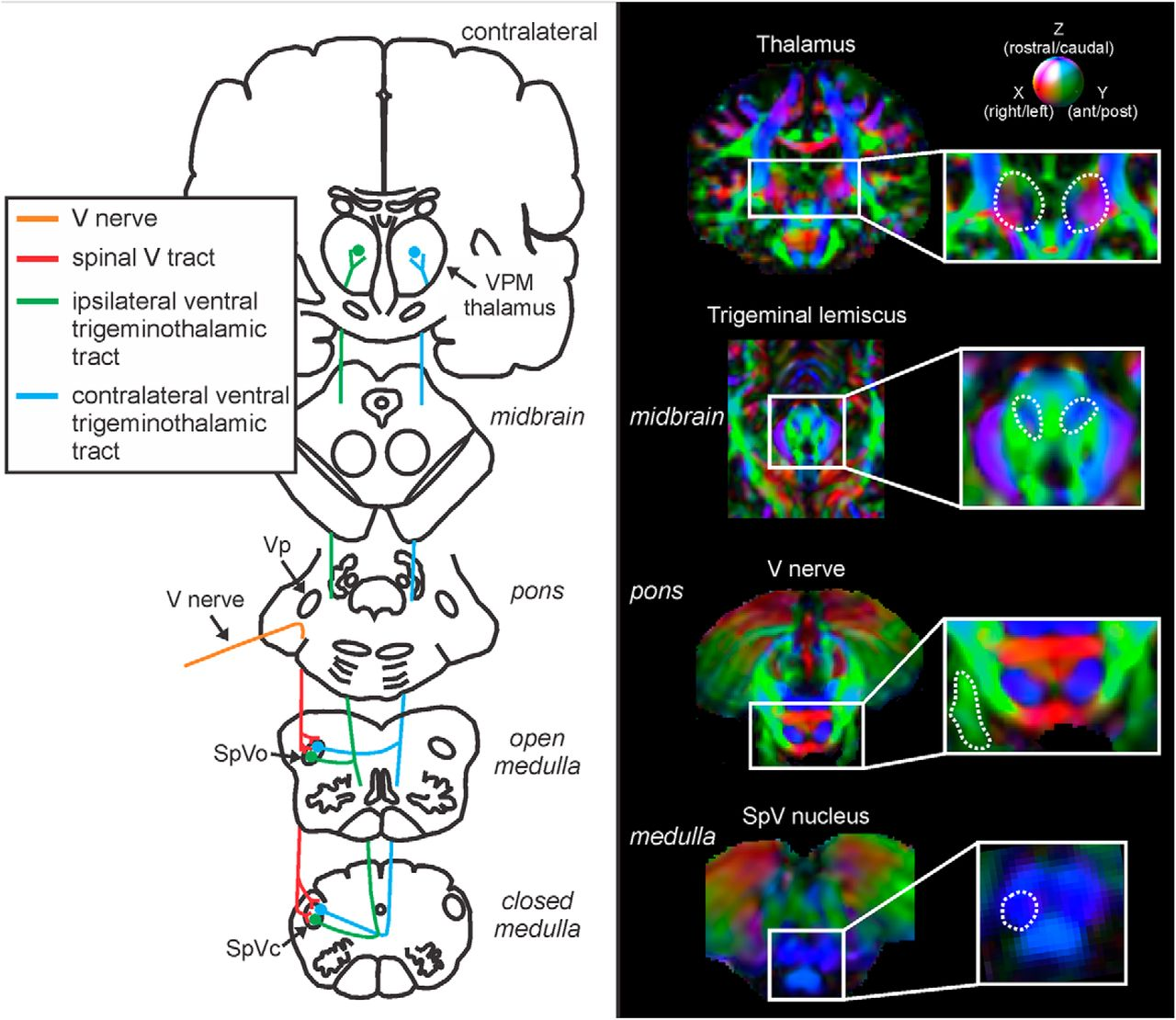 Anatomical Changes at the Level of the Primary Synapse in ...