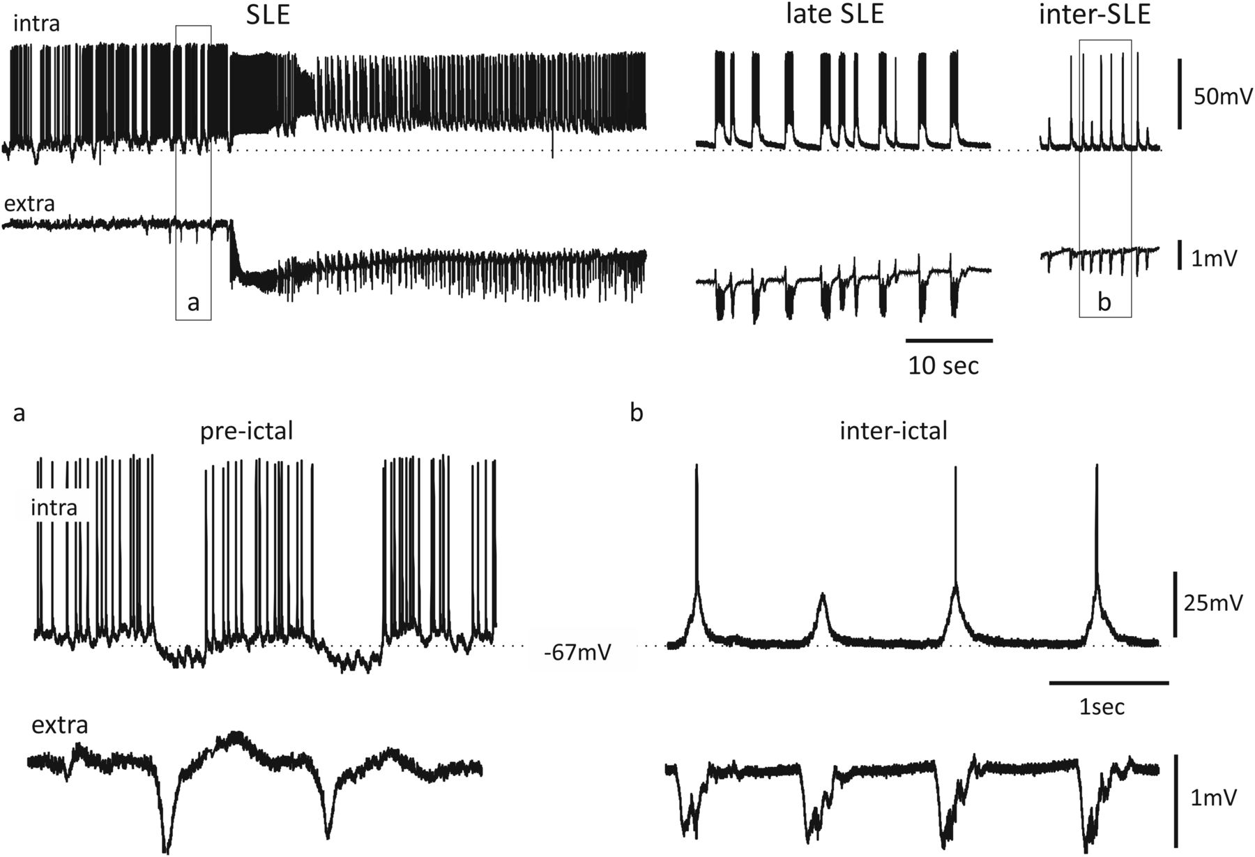 Synchronous Inhibitory Potentials Precede Seizure Like Events In
