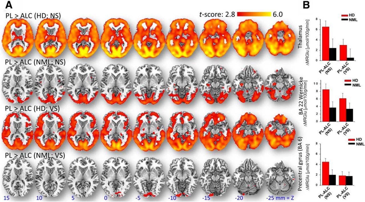 Alcohol decreases baseline brain glucose metabolism more in heavy download figure gamestrikefo Gallery