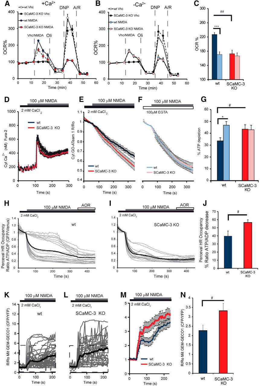 Depleted Atp Levels Causes Neural >> Mitochondrial Atp Mg Pi Carrier Scamc 3 Slc25a23 Counteracts Parp 1