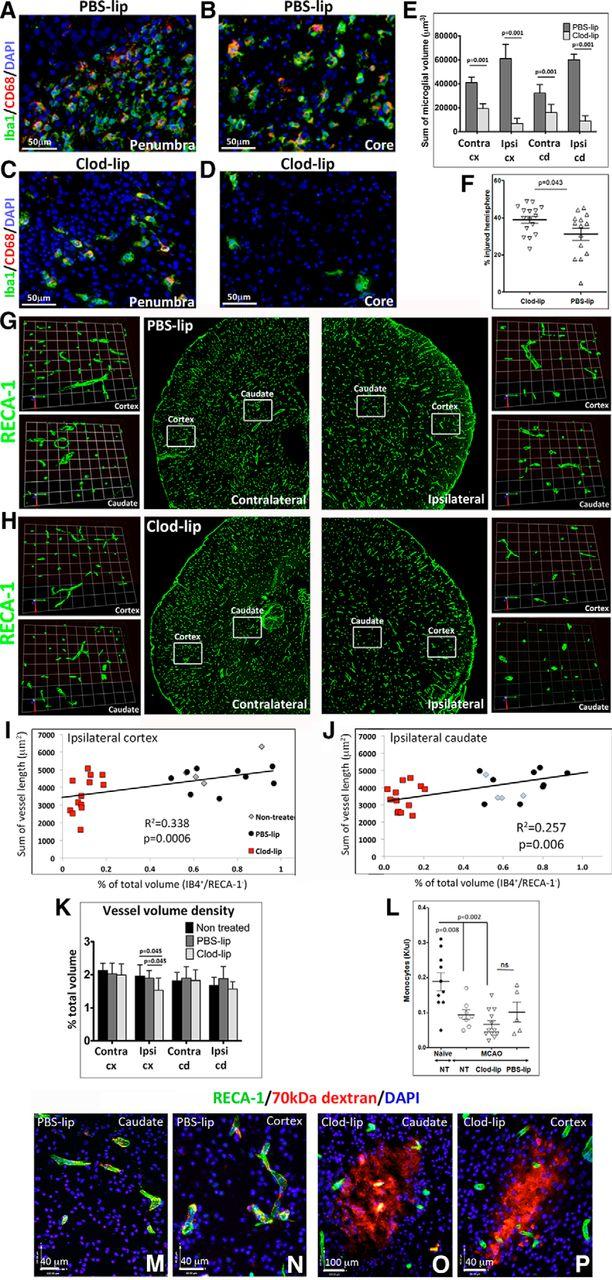 Microglial Cells Prevent Hemorrhage in Neonatal Focal Arterial