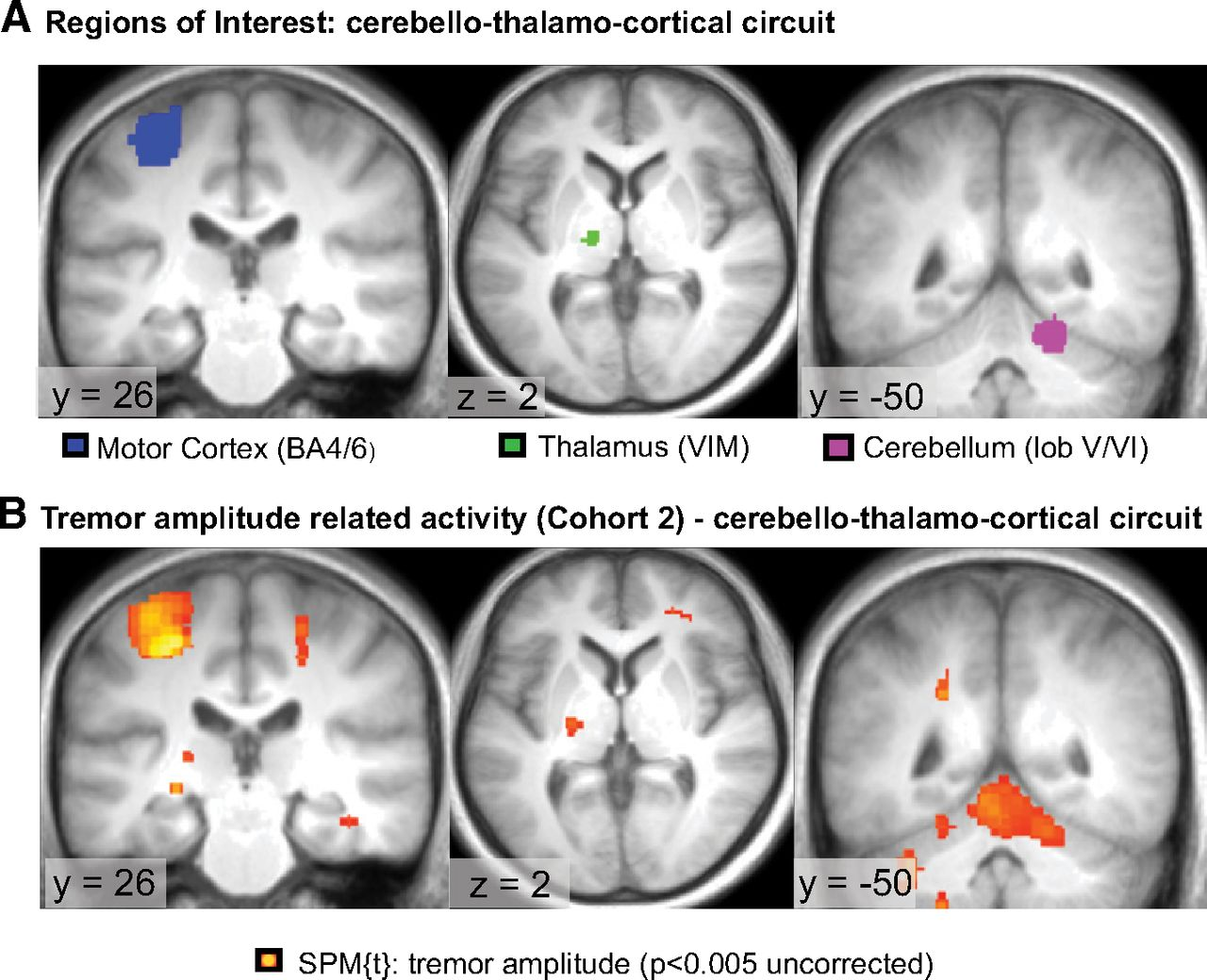 The Cerebral Network Of Parkinsons Tremor An Effective Cool Circuits Puts Your Brain Muscle To Test Download Figure