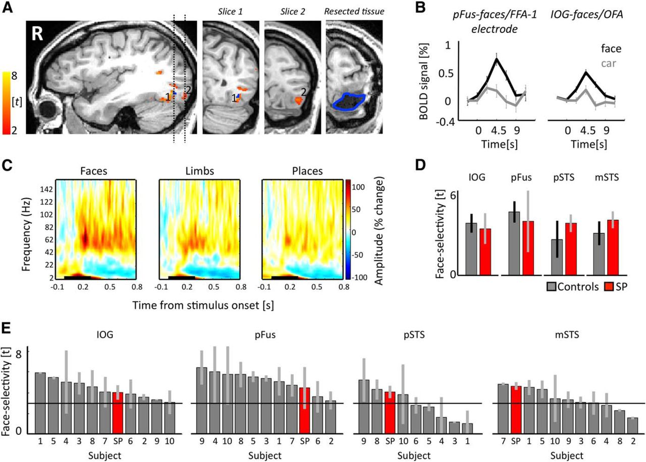 The Face-Processing Network Is Resilient to Focal Resection