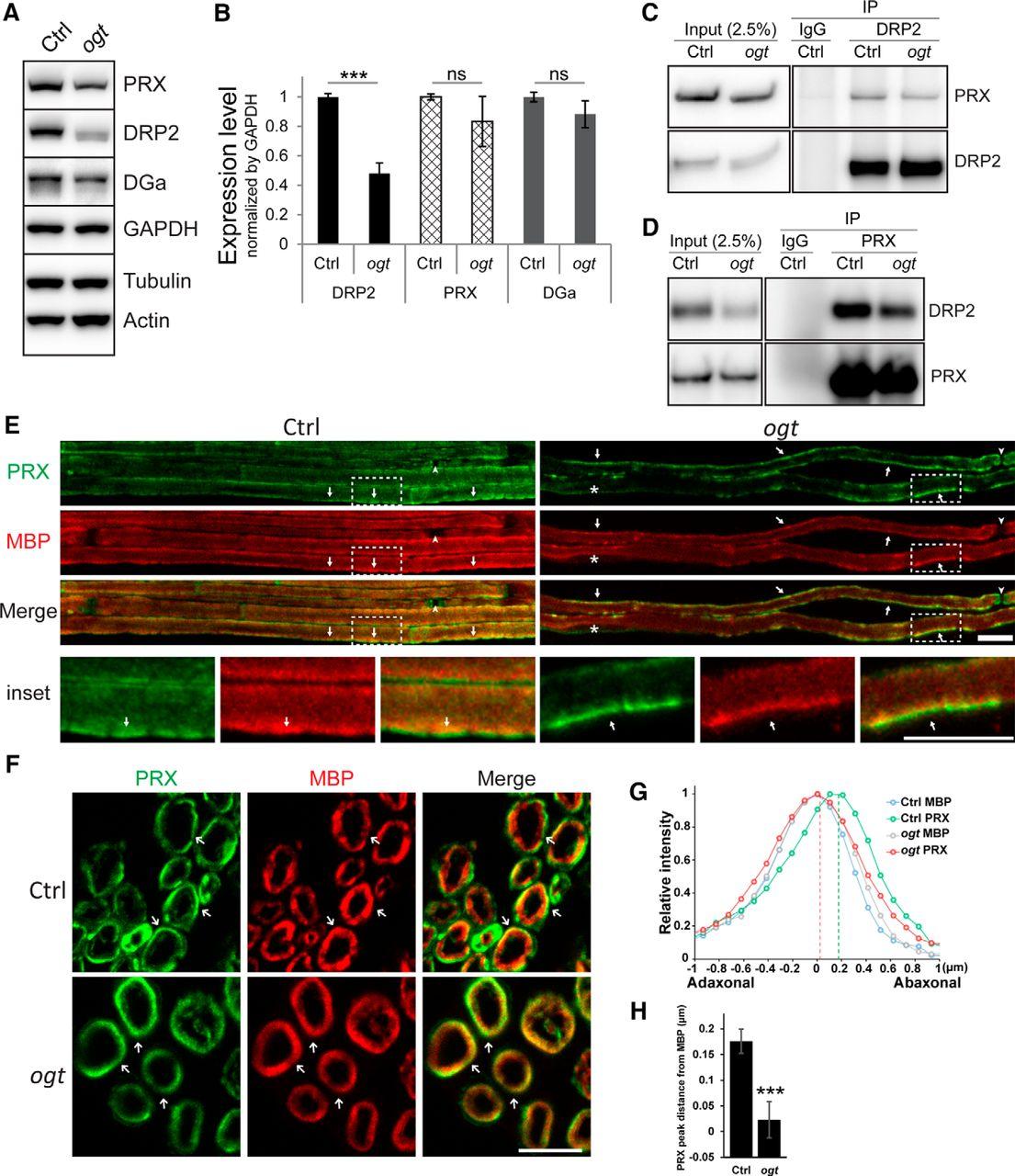 Schwann Cell O-GlcNAc Glycosylation Is Required for Myelin