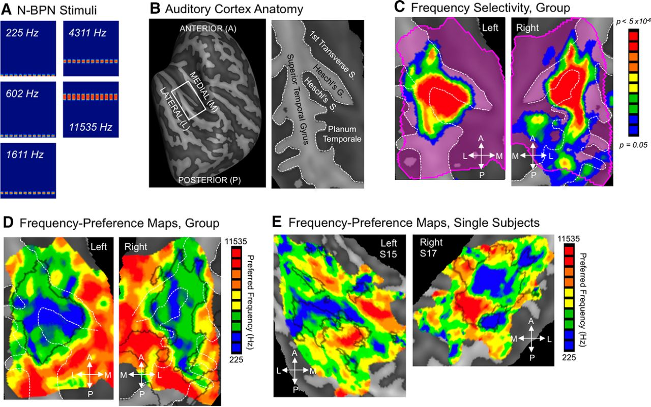 Functional Topography of Human Auditory Cortex | Journal of
