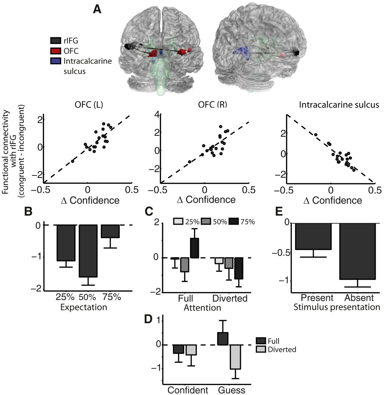 Predictions Shape Confidence In Right Inferior Frontal Gyrus