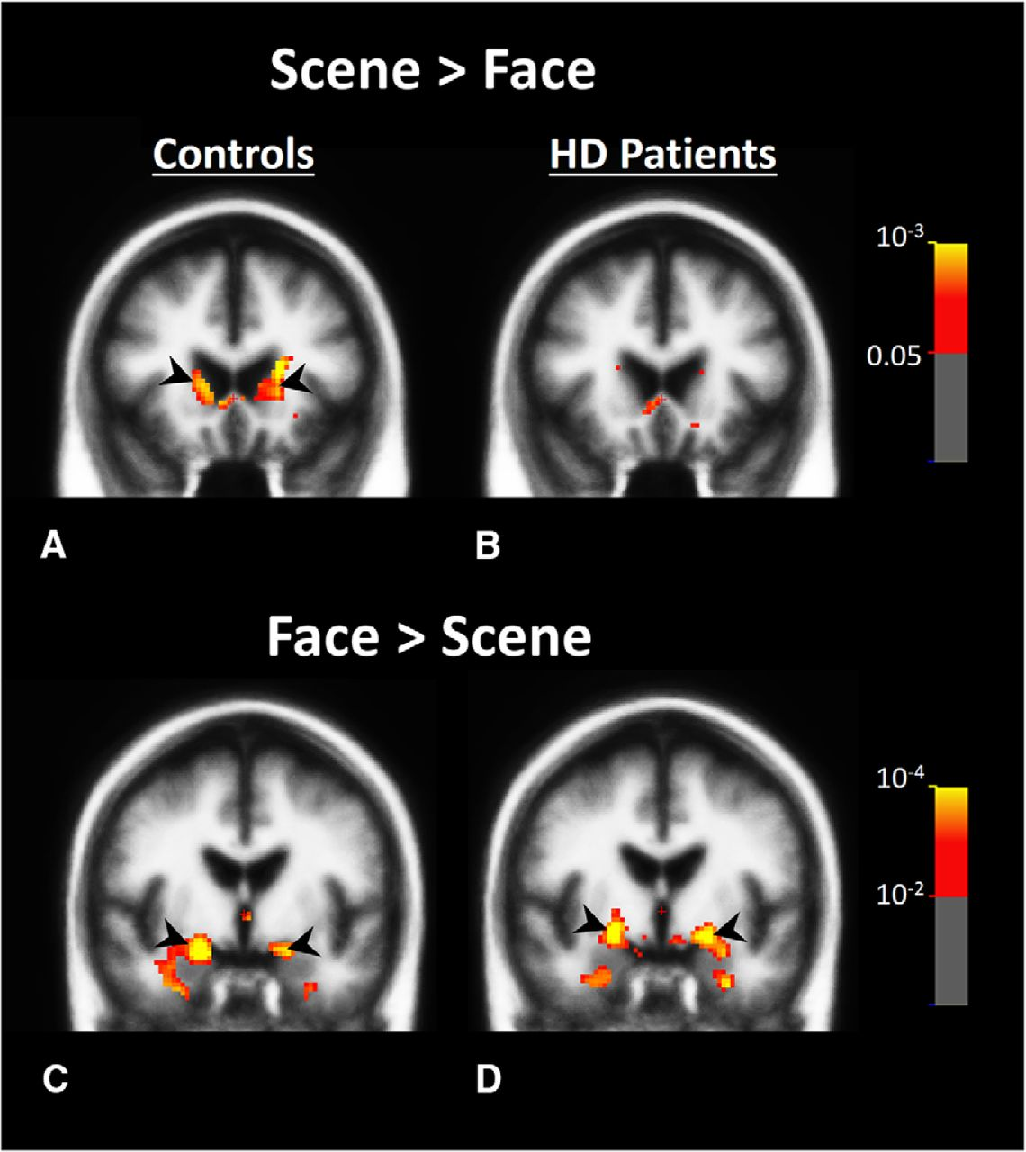 Impact of Visual Corticostriatal Loop Disruption on Neural