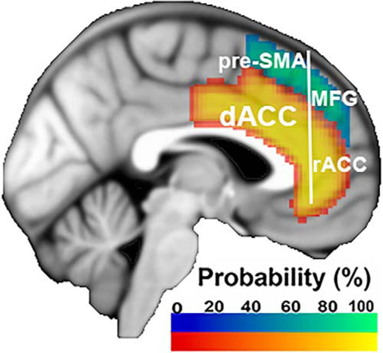 Distinct Regions within Medial Prefrontal Cortex Process Pain and ...