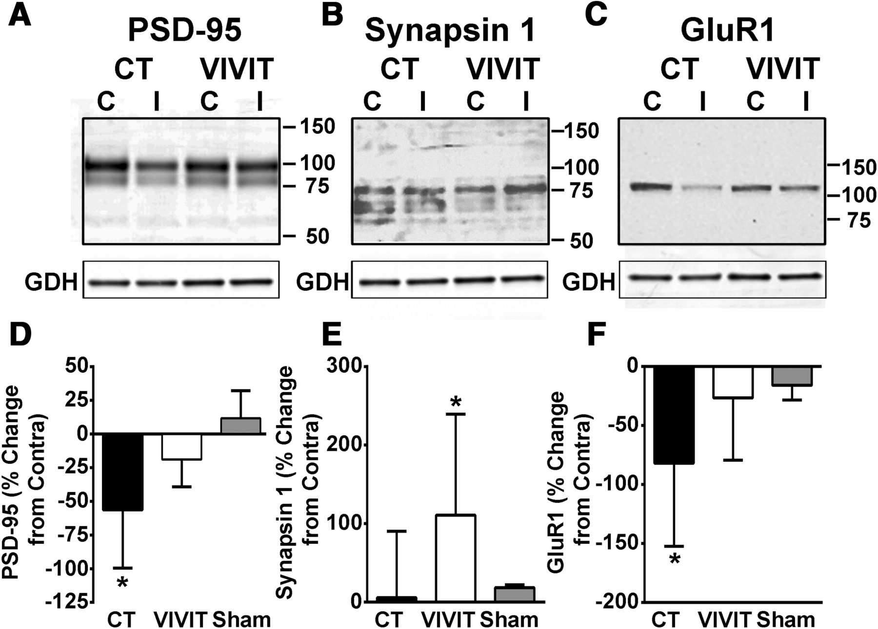 Blockade Of Astrocytic Calcineurin Nfat Signaling Helps To Normalize Ct Differential Wiring Diagram Download Figure