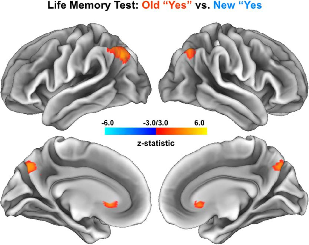 Are There Multiple Kinds of Episodic Memory? An fMRI Investigation ...