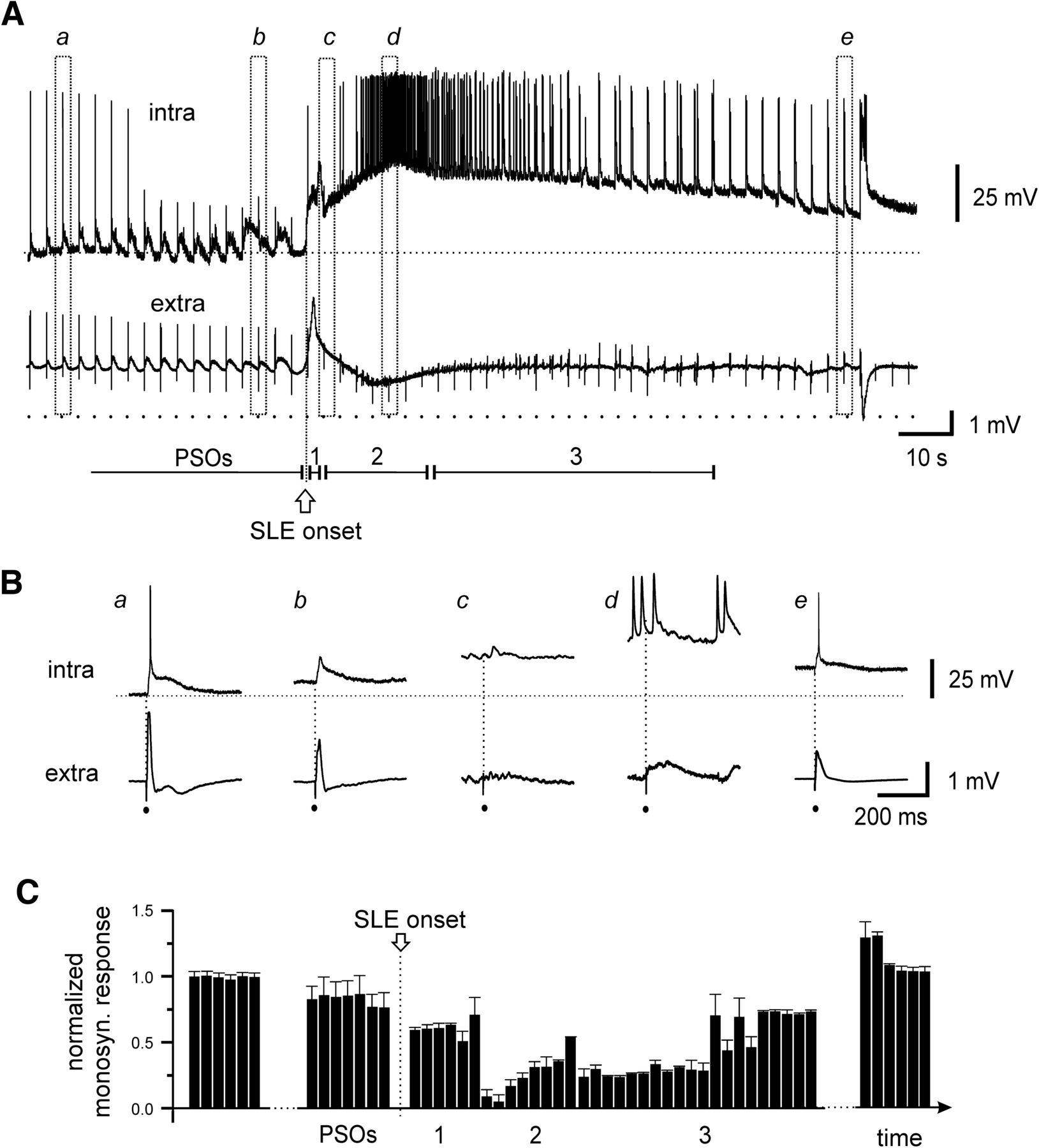 A Novel Focal Seizure Pattern Generated in Superficial Layers of the ...