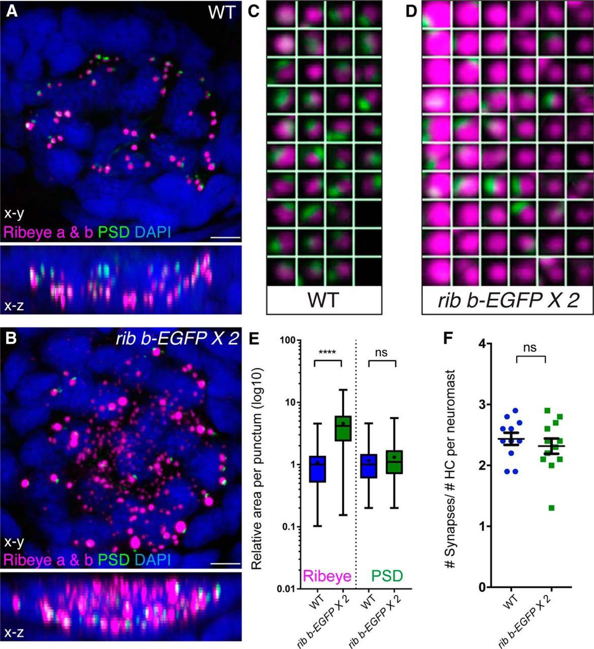 Figure 2  | Enlargement of Ribbons in Zebrafish Hair Cells